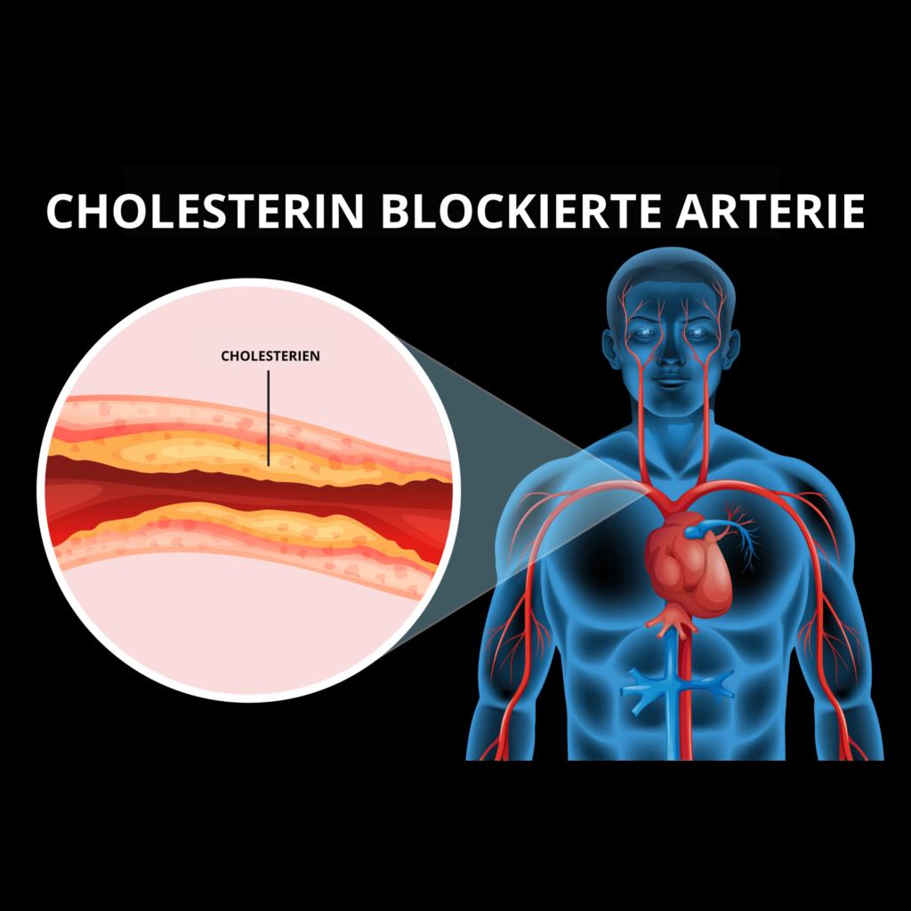 Cholesterin Blockierte Arterie